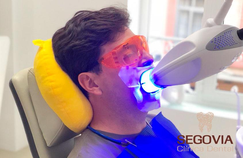 Blanqueamiento Dental Seguro y Facil de usar