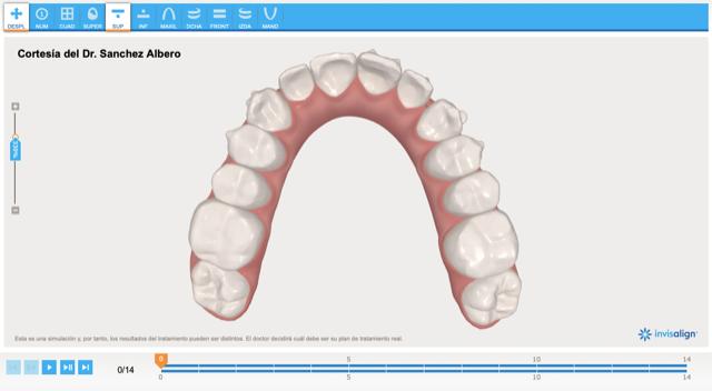 estudio-invisalign-clinica-dental-segovia-valencia-calle-padilla