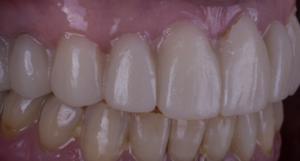 dentadura-blanqueamiento-dientes-blancos-sonrisa-profident-dental-segobia-valencia