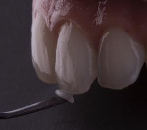 blanqueamiento-dientes-sanos-dental-segovia-philips-valencia