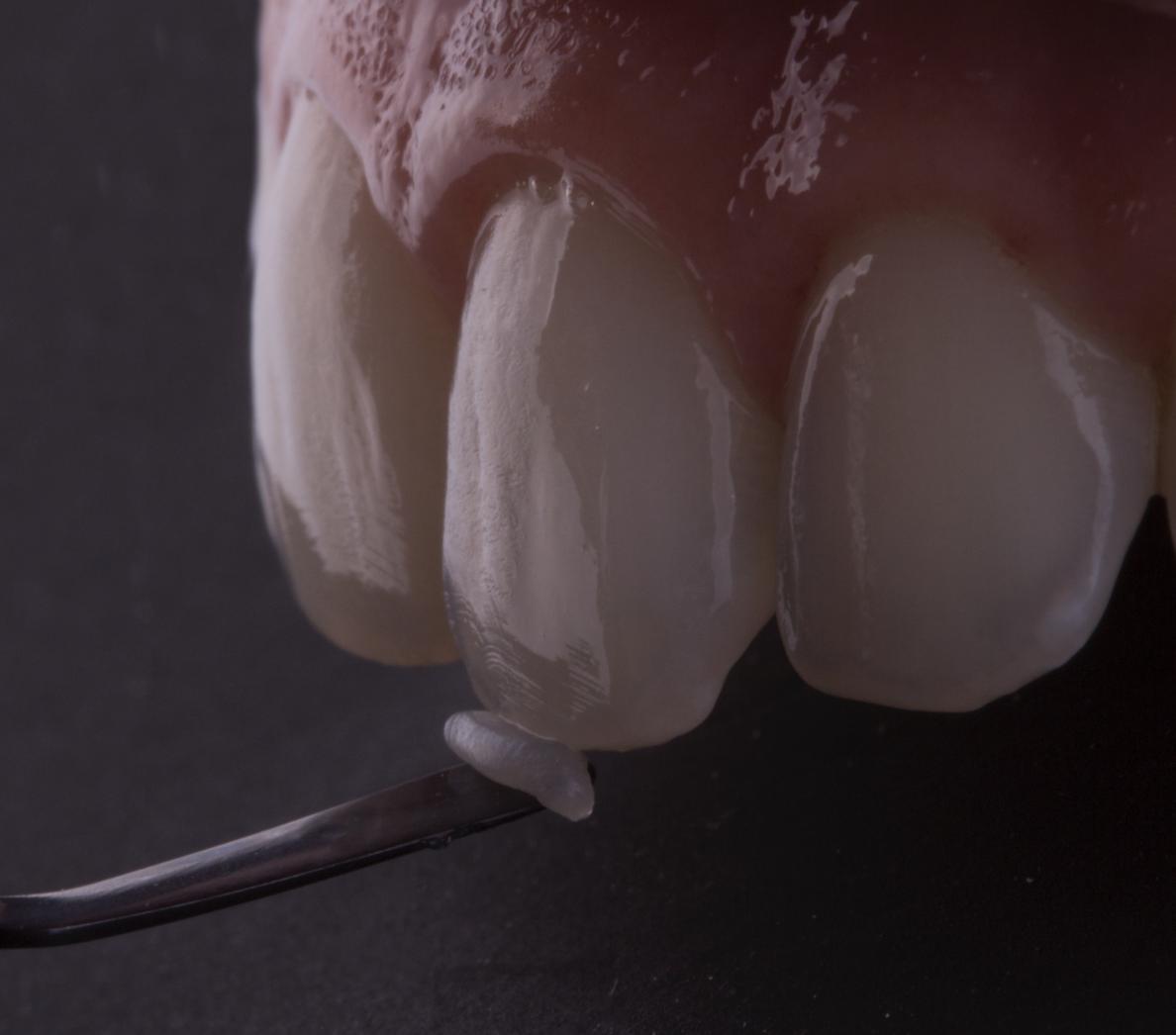 carillas-porcelana-dientes-sanos-dental-segovia-philips-valencia