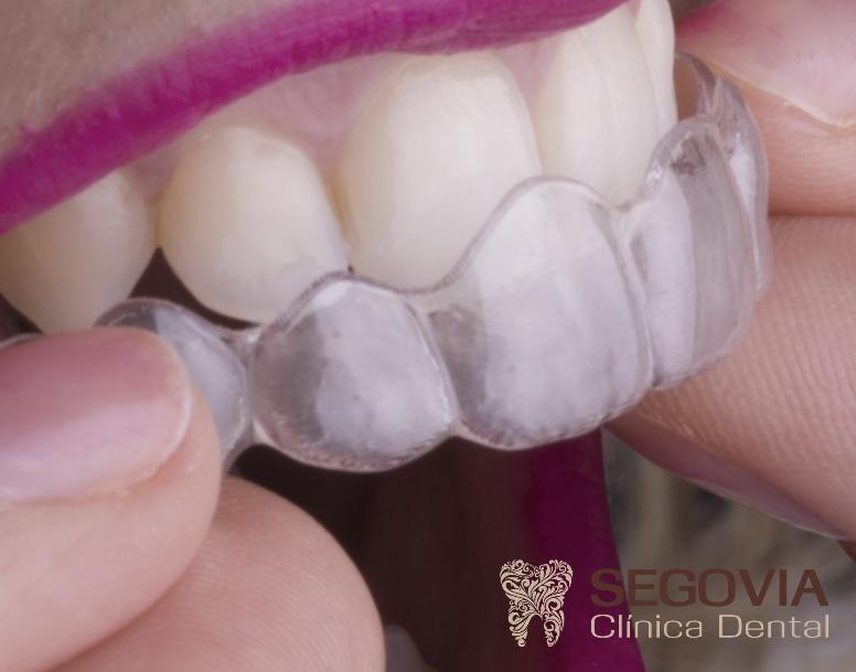 detalle-colocacion-ortodoncia-invisible-invisalign-clinica-dental-segovia-valencia